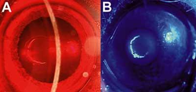 Bolest retine-testiranje hromatskim svetlom