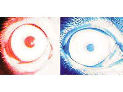 Normalan odgovor pupile posle testiranja sa hromatskim crvenim i plavim svetlom